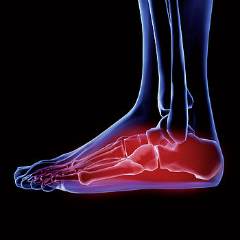 angepasster Fußschutz mit uvex medicare
